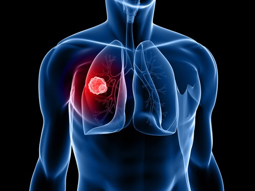 Lung cancer drug poised for global approval, says MWC investigator