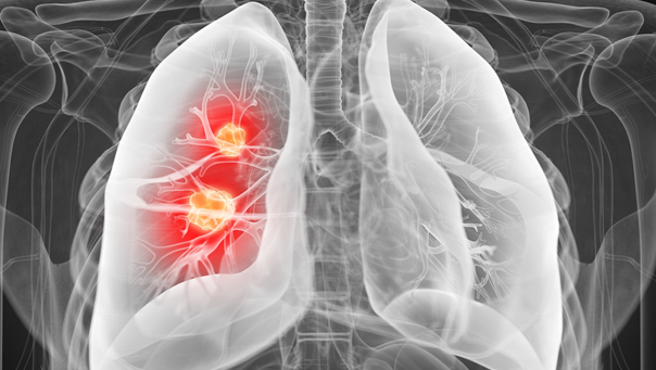 MWC welcomes landmark results for lung cancer drug