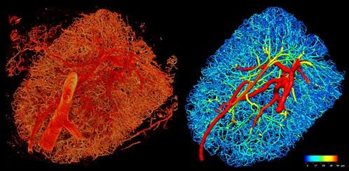LN Vasculature Web